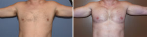 custom-pectoral-and-biceps-implants-result-front-view-dr-barry-eppley-indianapolis