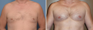 extra-large-pectoral-implants-result-fronty-view-dr-barry-eppley-indianapolis