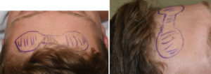 forehead-horn-reduction-dr-barry-eppley-indianapolis