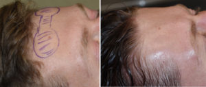 forehead-horn-reduction-surgery-intraop-results-side-view-dr-barry-eppley-indianapolis