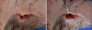 hairline-approach-to-temporal-implants-intraop-1-dr-barry-eppley-indianapolis