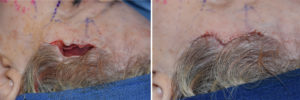 hairline-approach-to-temporal-implants-intraop-3-dr-barry-eppley-indianapolis