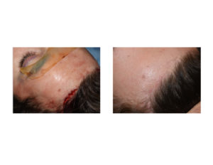 incision-and-scar-healing-of-endoscopic-brow-bone-implant-placement-dr-barry-eppley-indianapolis