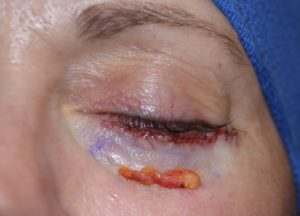 lower-blepharoplasty-injected-fat-extraction-dr-barry-eppley-indianapolis