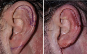 Macrotia Reduction intraop left ear Dr Barry Eppley Indianapolis