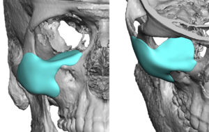 orbitozygomatic-implant-for-facial-asymmetry-dr-barry-eppley-indianapolis
