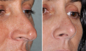 Pinocchio Nose Rhinoplasty result oblique view Dr Barry Eppley Indianapolis