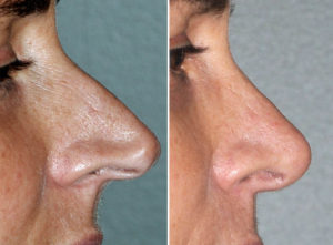 Pinocchio Nose Rhinoplasty result side view Dr Barry Eppley Indianapolis