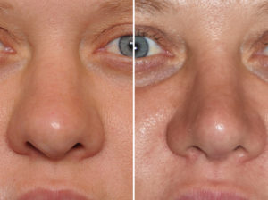 thick-nose-revision-rhinoplasty-result-front-view-dr-barry-eppley-indianapolis