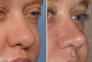 thick-nose-revision-rhinoplasty-result-oblique-view-dr-barry-eppley-indianapolis