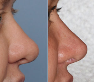 thick-nose-revision-rhinoplasty-result-side-view-dr-barry-eppley-indianapolis