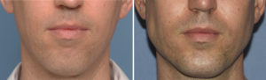 Total Jawline Augmentation result front view Dr Barry Eppley Indianapolis
