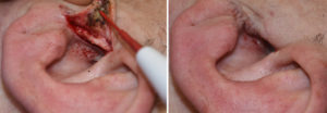 tragal-ear-skin-flap-closure-for-hair-removal-dr-barry-eppley-indianapolis