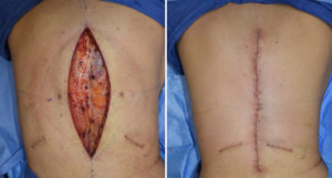 vertical-back-lift-intraop-result-dr-barry-eppley-indianapolis