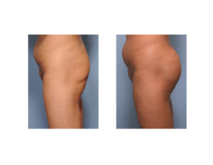 asian-buttock-implants-result-side-view-dr-barry-eppley-indianapolis