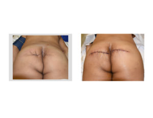 buttock-reconstruction-with-dermal-fat-grafts-back-view-dr-barry-eppley-indianapolis