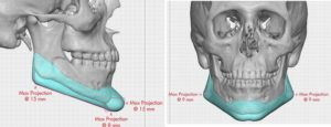 custm-jawline-implant-dimensions-dr-barry-eppley-indianapolis