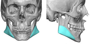 custom-jaw-angle-implant-design-dr-barry-eppley-indianapolis