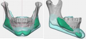 custom-jawline-implant-replacement-design-dr-barry-eppley-indianapolis