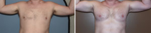 custom-pectoral-and-bicep-implants-result-front-view-dr-barry-eppley-indianapolois