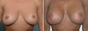 early-breast-lift-scar-result-dr-barry-eppley-indianapolis