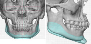 female-custom-jawline-implant-design-dr-barry-eppley-indianapolis