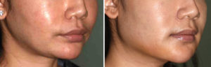 female-custom-jawline-implant-oblique-view-dr-barry-eppley-indianapolis