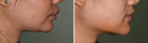female-custom-jawline-implant-result-side-view-dr-barry-eppley-indianapolis