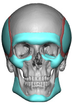 fig-11a-panfacial-implants-design-front-view