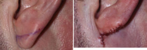 helical-rim-earlobe-reduction-result-left-side-dr-barry-eppley-indianapolis