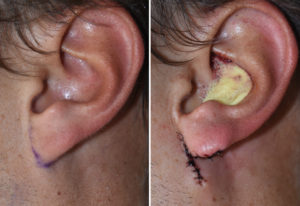 left-earlobe-attachment-surgery-result-dr-barry-eppley-indianapolis