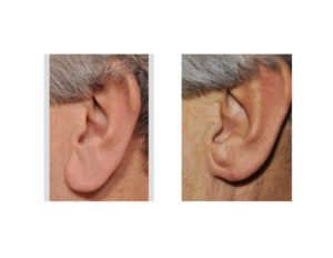 left-earlobe-reduction-wedge-excision-results-dr-barry-eppley-indianapolis