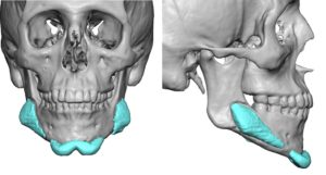 malpositioned-chin-and-jaw-angle-implants