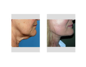 necklift-dr-barry-eppley-indianapolis