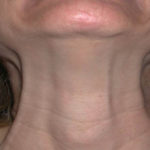platysmal-neck-bands-dr-barry-eppley-indianapolis