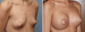 puffy-nipple-braest-augmentation-results-oblique-view-dr-barry-eppley-indianapolis