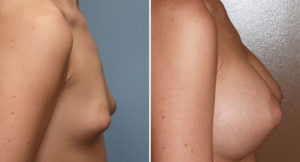puffy-nipple-breast-augmentation-result-side-view-dr-barry-eppley-indianapolis