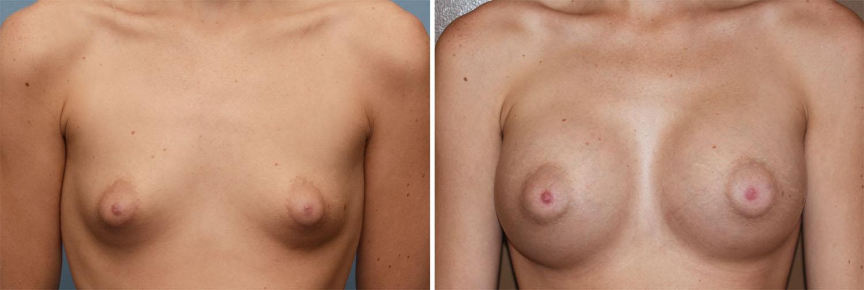 areola boob implants