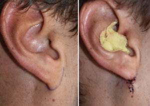 right-earlobe-attachment-surgery-result-dr-barry-eppley-indianapolis