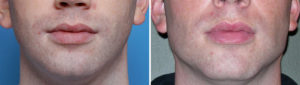 standard-chin-and-jaw-angle-implants-result-front-view-dr-barry-eppley-indianapolis