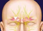 supraorbital-nerve-anatomy-dr-barry-eppley-indianapolis