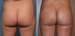 tb-buttock-implant-results-back-view-dr-barry-eppley-indianapolis
