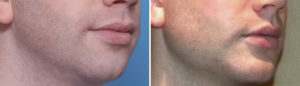 three-piece-chin-and-jaw-angle-implants-result-oblique-view-dr-barry-eppley-indianapolis