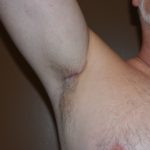 transaxillary-incision-for-pectoral-and-bicep-implants-dr-barry-eppley-indianapolis