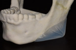 vertical-lengthening-jaw-angle-implants-design-dr-barry-eppley-indianapolis