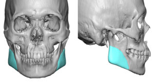 vertical-lengthening-jaw-angle-implants-dr-barry-eppley-indianapolis