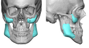 widening-jaw-angle-imlpants-3d-ct-scan-dr-barry-eppley-indianapolis