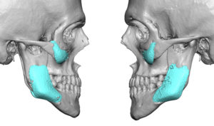 widening-jaw-angle-implants-in-high-jaw-angles-dr-barry-eppley-indianapolis