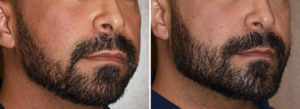 custom-jawline-implant-results-oblioque-view-dr-barry-eppley-indianapolis