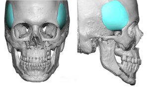 custom-temporal-implants-design-dr-barry-eppley-indianapolis